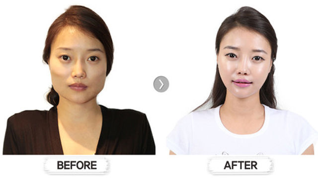 before_and_after_photos_of_korean_plastic_surgery duck face