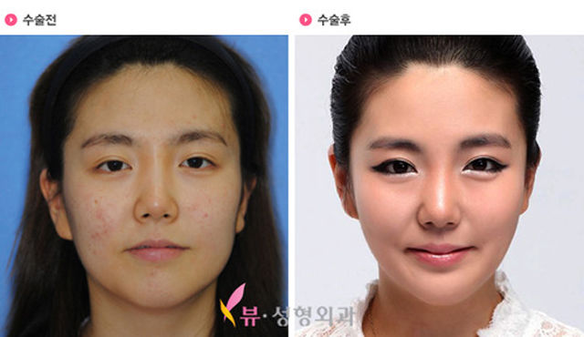 manipulation plastic surgery korea