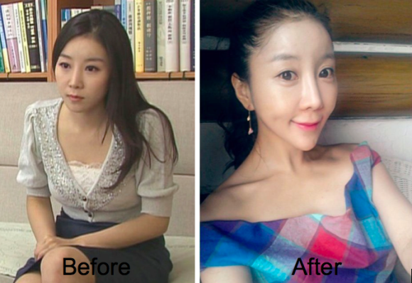monstruous plastic surgery south corea